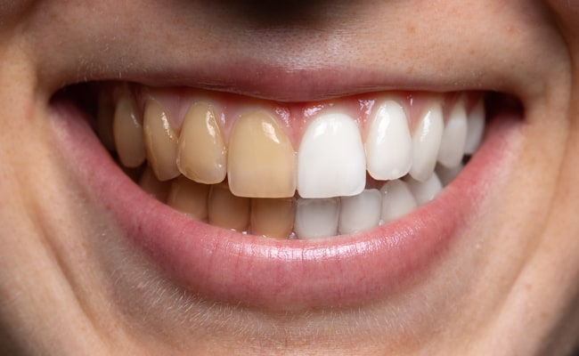 Top 4 Causes of Yellowing Teeth